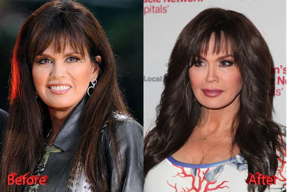 Marie Osmond Before and After